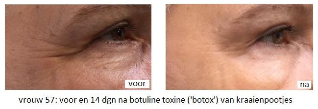vrouw 57 voor en 14 dagen na botulinetoxine behandeing van de kraaienpootjes